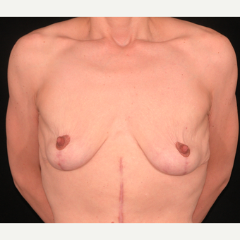 35 year old woman treated with Breast Lift after 3052690