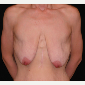 35 year old woman treated with Breast Lift before 3052690