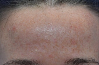 25-34 year old woman treated with Age Spots Treatment before 3141147