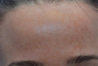 25-34 year old woman treated with Age Spots Treatment after 3141147