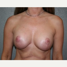 25-34 year old woman treated with Breast Lift after 3339937