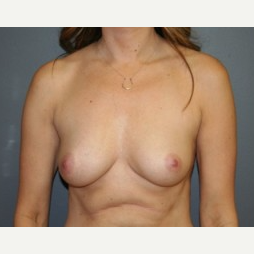 25-34 year old woman treated with Breast Lift before 3339937