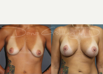 Breast Lift with Implants before 3731581