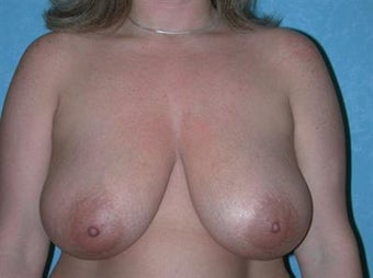 Breast Reduction before 1478649