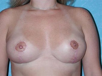 Breast Reduction after 1478649