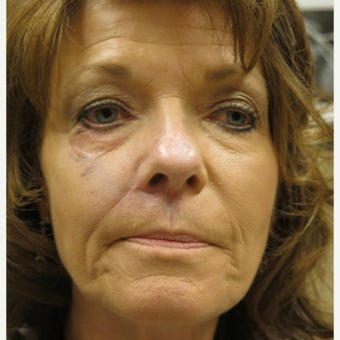 45-54 year old woman treated with Juvederm before 1760954