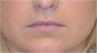 Permalip lip implant for young women that desired permanent and natural lip augmentation before 1081517