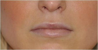 Permalip lip implant for young women that desired permanent and natural lip augmentation after 1081517