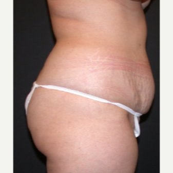 Liposuction 1699675