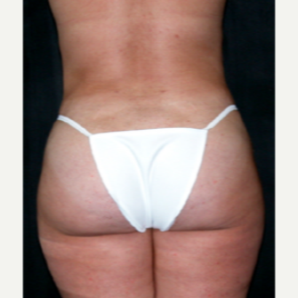 Liposuction after 1699675