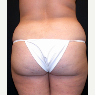 Liposuction before 1699675