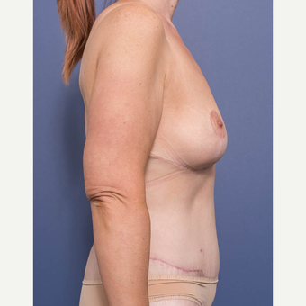 35-44 year old woman treated with Breast Lift after 3766899