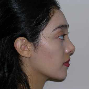 18-24 year old woman treated with Rhinoplasty after 3264770