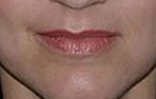 Lip Augmentation with Restylane before 97300