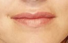 Lip Augmentation with Restylane after 97300
