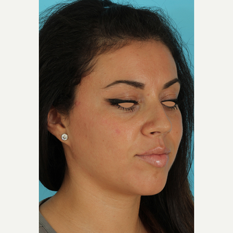 25-34 year old woman treated with Rhinoplasty before 3691325