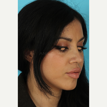 25-34 year old woman treated with Rhinoplasty after 3691325