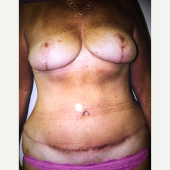 45-54 year old woman treated with Mommy Makeover after 3333607