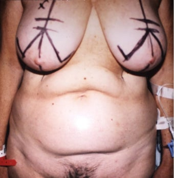 45-54 year old woman treated with Mommy Makeover before 3333607