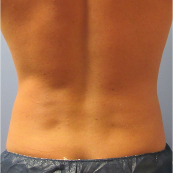 25-34 year old man treated with CoolSculpting after 3763973