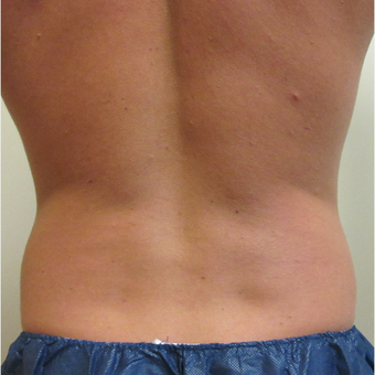 25-34 year old man treated with CoolSculpting before 3763973
