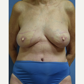 55-64 year old woman treated with Breast Reconstruction after 3630773