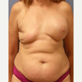 55-64 year old woman treated with Breast Reconstruction before 3630773