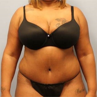 Tummy Tuck with Liposuction after 2204384