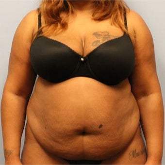 Tummy Tuck with Liposuction before 2204384