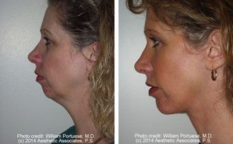 Facelift with Chin Implant, Dermabrasion before 91414