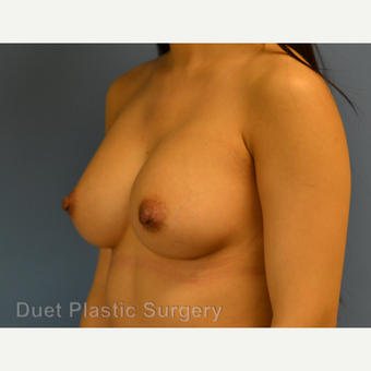 25-34 year old woman treated with Breast Augmentation after 3342121