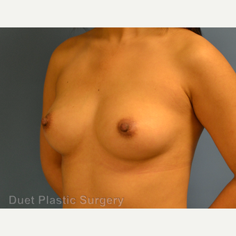25-34 year old woman treated with Breast Augmentation before 3342121