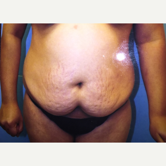 25-34 year old woman treated with Tummy Tuck before 3379156