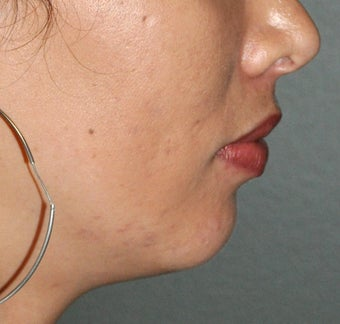 26 Year ld Female Treated For A Weak Jawline