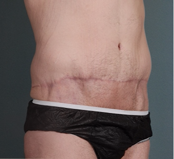 26 year old man treated with Tummy Tuck after 3762908