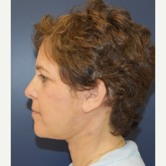 55-64 year old woman treated with Neck Lift after 3461052