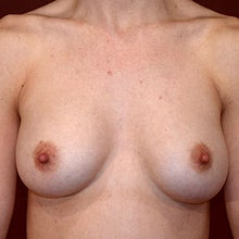40 Year Old Female Breast Augmentation: Implant Revision / Replacement
