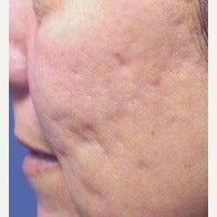 45-54 year old woman treated with Fraxel Laser before 1967400