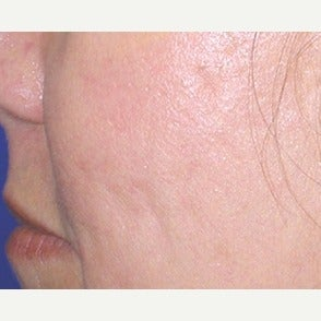 45-54 year old woman treated with Fraxel Laser after 1967400