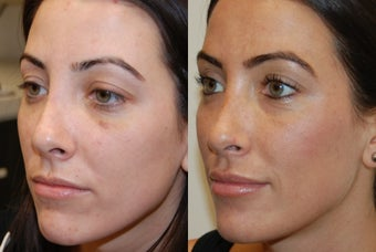 Non-surgical revision rhinoplasty with Silikon-1000