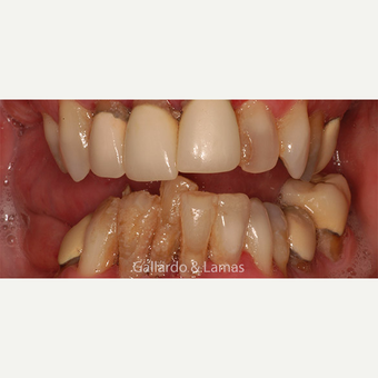 55-64 year old woman treated with All-on-4 Dental Implants before 3265885