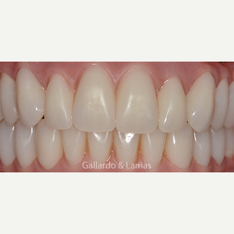 55-64 year old woman treated with All-on-4 Dental Implants after 3265885