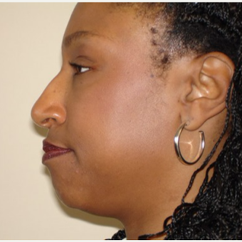 35-44 year old woman treated with Rhinoplasty before 3506667