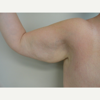 25-34 year old woman treated with Arm Lift before 3265925