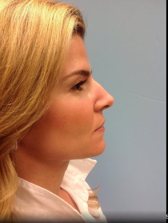 25-34 year old woman treated with Rhinoplasty before 3828062