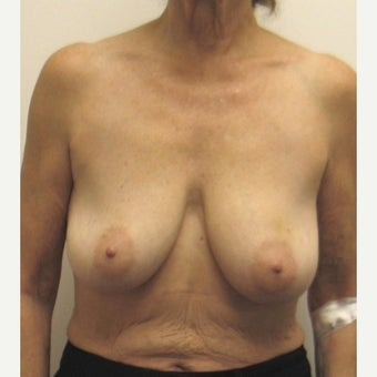 65-74 year old woman treated with Breast Reconstruction