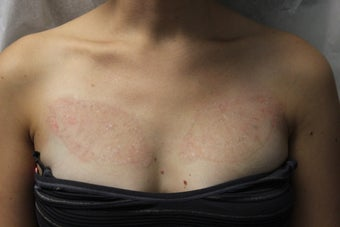 Patient with two large, chest tattoos after five PicoSure treatment's  after 1522918