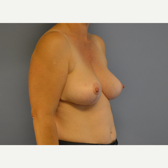45-54 year old woman treated with Breast Reduction after 3531049