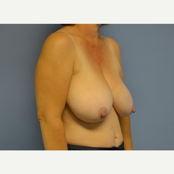 45-54 year old woman treated with Breast Reduction before 3531049