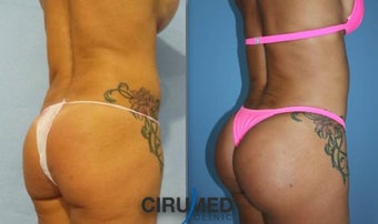Lipoimplant combination Brazilian butt lift 1488402